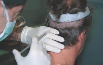 Pratical Course on Hair Restoration Surgery