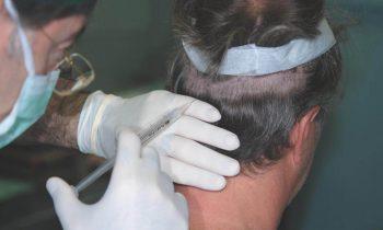 Pratical Course on Hair Restoration Surgery