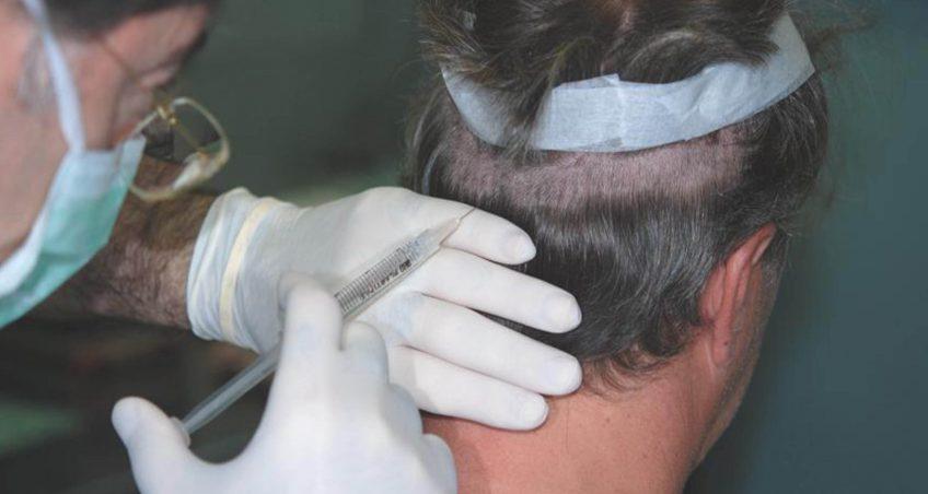 Corso pratico di Chirugia della Calvizie