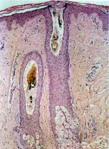 Risultati immagini per tricotillomania